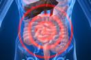 Résumé sur l'appendicite