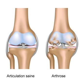 Arthrose infographie