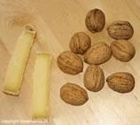 Causes des aphtes - Aphtes aliments