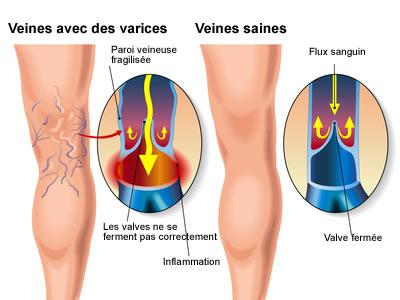 La varicosité sur les pieds le traitement le massage