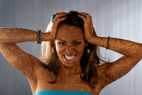 La soude de la pigmentation sur la personne les rappels