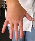 Vitiligo tâches blanches