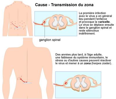 zona-infographie