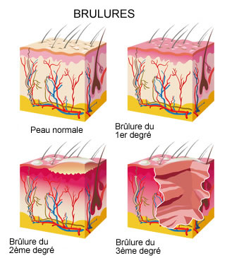 brulures-infographie