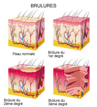 Br lures prise en charge traitements creapharma - Brulure coup de soleil 2eme degre ...