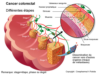 cancer colorectal symptôme
