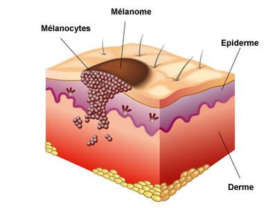 Cancer de la peau carcinome et m lanome creapharma - Coup de soleil definition ...