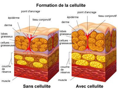 cellulite définition formation