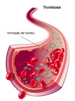 Thrombose résumé