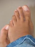 Résumé des mycoses des pieds
