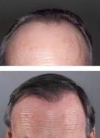 Biotine - chute des cheveux