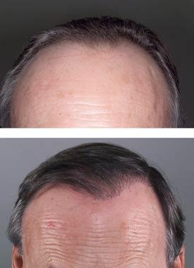 Vitamine B5 chute des cheveux