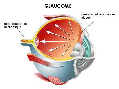 Glaucome définition