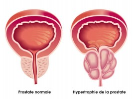 définition hypertrophie de la prostate