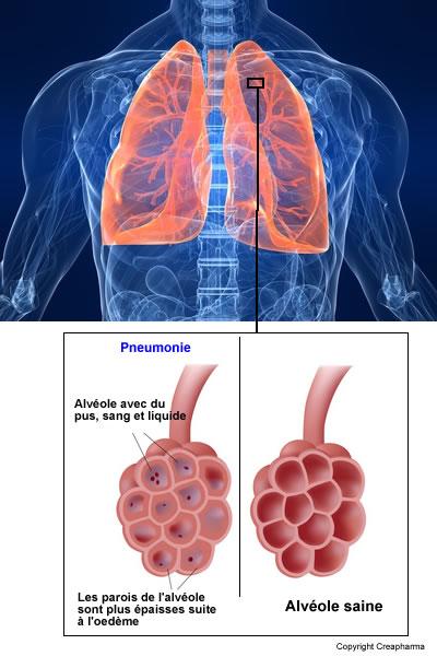 Définition de la pneumonie