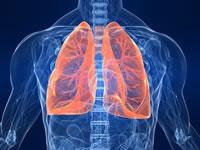 Résumé pneumonie