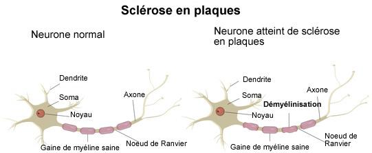 prednisone and adrenal glands