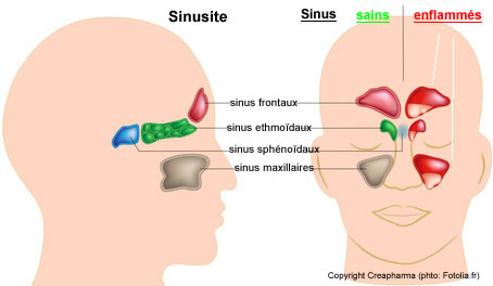 symptomes sinusite sinus