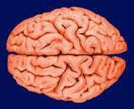 meningite-definition